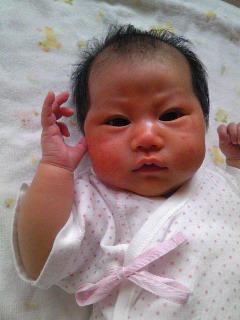 ニキビ 新生児 赤ちゃんのお肌がぶつぶつに!乳児湿疹ってどんな症状?